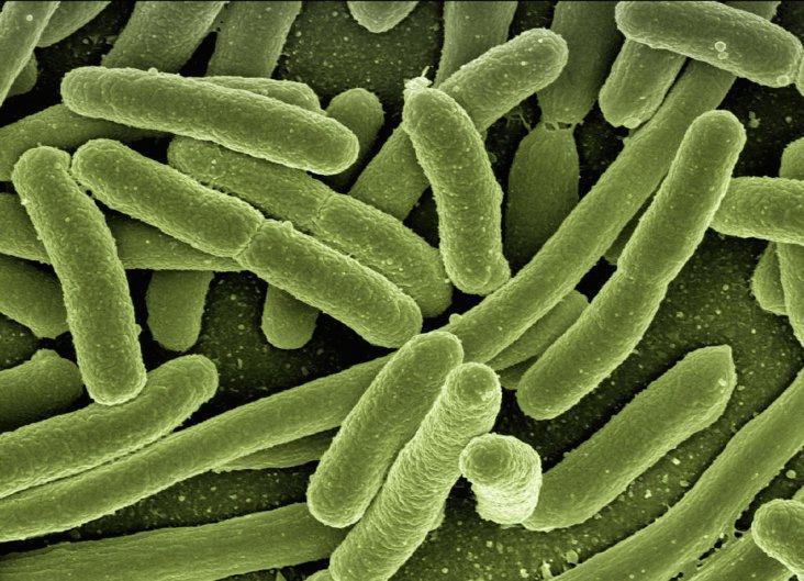 koli-bacteria-123081_1920